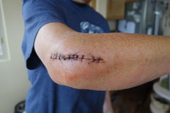 Stiches from elbow surgrey. Stock Photography