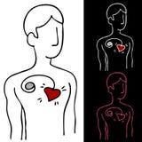 Stimolatore cardiaco Fotografia Stock Libera da Diritti