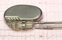 Stimulateur sur l'électrocardiographe Photo libre de droits