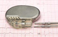 Stimulateur sur l'électrocardiographe Photos libres de droits