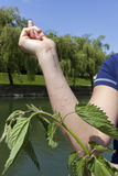 Stinging nettle allergic reaction Stock Images
