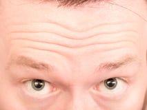 stirnrunzeln Stockbilder