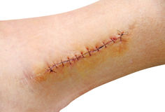 Stitch. In the leg (ankle stock photo