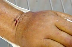 Stitch wound. Stock Photography