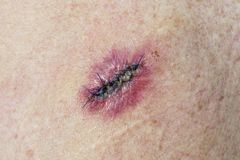 Basal Cell Carcinoma. Stitched incision from the removal of a Basal Cell Carcinoma with slight infection Royalty Free Stock Images