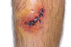 Stitches. Stock Photo
