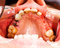 Stitches after Dental Extraction Stock Image
