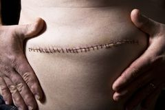 Stitches From Surgery Royalty Free Stock Images