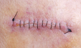 Stitches After Skin Cancer Removal. Stitches On Arm After Having Skin Cancer Removed Royalty Free Stock Photography