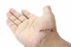 Stitches wound. Royalty Free Stock Image