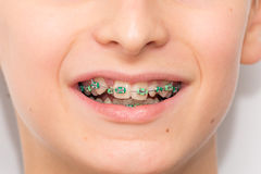 Stock photo of the metal braces Stock Images