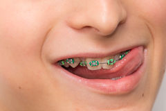 Stock photo of the metal braces Royalty Free Stock Photography