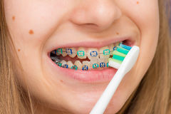 Stock photo of the metal braces Royalty Free Stock Image