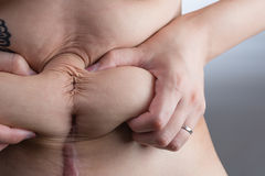 Stomach After a C-Section Stock Image