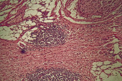 Stomach cancer cells under the microscope. Royalty Free Stock Images