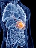 Stomach cancer Stock Photos
