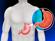 Stomach cancer in human Stock Photos