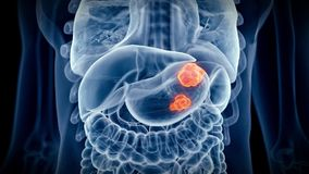 The stomach cancer stock footage