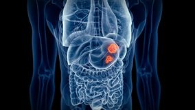 The stomach cancer stock video