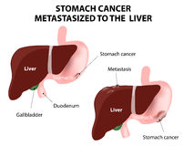 Stomach cancer Metastasized to the  liver Royalty Free Stock Photos