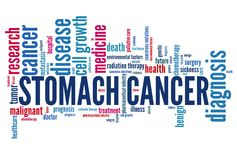 Stomach cancer Stock Image