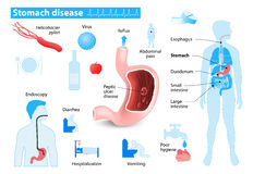 Stomach disease stock illustration
