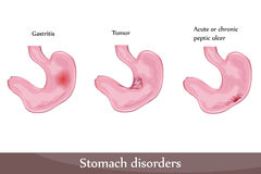 Stomach disorders. Peptic ulcer, gastritis, tumor. Detailed diagram vector illustration