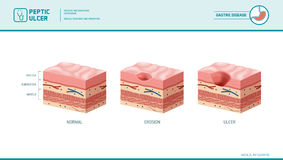 Stomach erosion and peptic ulcer. Stages infographic: stomach lining and mucosa cross section diagram, medical illustration Royalty Free Stock Photos