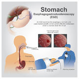 Stomach. Esophagogastroduodenoscopy, also called by various other names, is a diagnostic endoscopic procedure that visualizes the upper part of the Royalty Free Stock Image