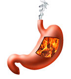 Stomach heartburn  Royalty Free Stock Photography