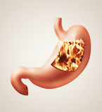 Stomach heartburn concept. Photorealistic illustration of human stomach with heartburn disease Stock Image