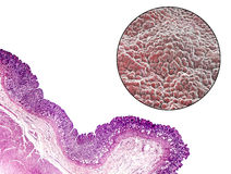 Stomach mucosa, micrograph and illustration Royalty Free Stock Photography