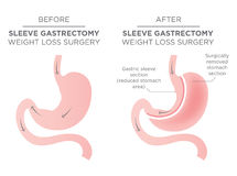 Stomach Staple Bariatric Surgery Royalty Free Stock Image