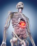 A stomach tumor. 3d rendered medically accurate illustration of a stomach tumor royalty free illustration