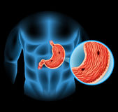 Stomach Ulcer diagram in human Royalty Free Stock Photography