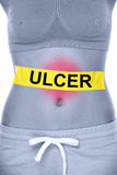 Stomach ulcer health problem showing woman abdomen Stock Images