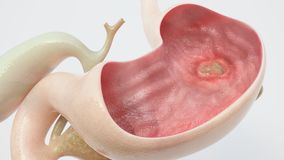 Stomach ulcer - high degree of detail - 3D Rendering. Stomach ulcer - high degree of detail -- 3D Rendering Royalty Free Stock Images