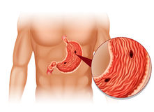Stomach Ulcer in human body Stock Image