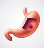 Stomach ulcer Royalty Free Stock Photography