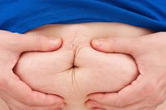 Stomach of the woman. Stomach of the adult obese woman with cellulitis close-up royalty free stock photos