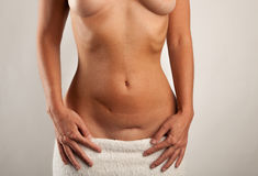 Stomach of a woman with scars. Stomach of a beautiful woman with two scars Stock Images