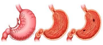 stomaco Fotografia Stock