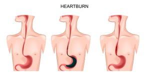 Stomaco, esofago, bruciore di stomaco royalty illustrazione gratis
