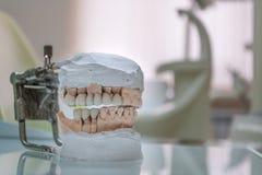 Stomatologic människakäkar för Gypsum Keramisk-metall krona på murbrukmodell på suddig bakgrund av det tand- kontoret arkivbild