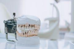 Stomatologic människakäkar för Gypsum Keramisk-metall krona på murbrukmodell på suddig bakgrund av det tand- kontoret Vit signal fotografering för bildbyråer