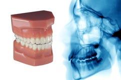 Stomatologiczna opieka: niewidzialny ortodontyczny aligner i cephalometric promieniowanie rentgenowskie Zdjęcia Royalty Free