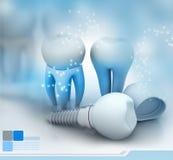 stomatologicznego elementów wszczepu odosobniony widok biel ilustracja wektor
