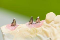 stomatologicznego elementów wszczepu odosobniony widok biel Fotografia Royalty Free