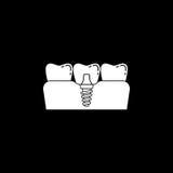 Stomatologicznego wszczepu bryły ikona Fotografia Royalty Free
