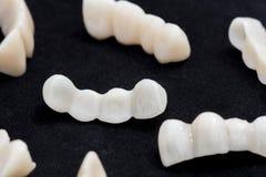 Stomatologiczni ceramiczni lub cyrkon zębu mosty na ciemnym czerni ukazują się Fotografia Stock